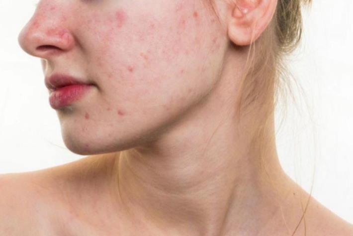 imagen chica con manchas en la piel por el acne