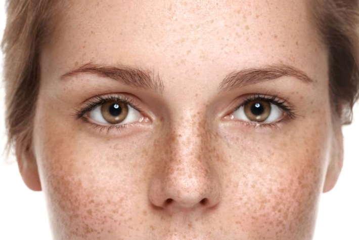imagen cara de una chica con manchas en la piel por el sol