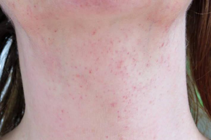 imagen manchas en la piel por leucemia