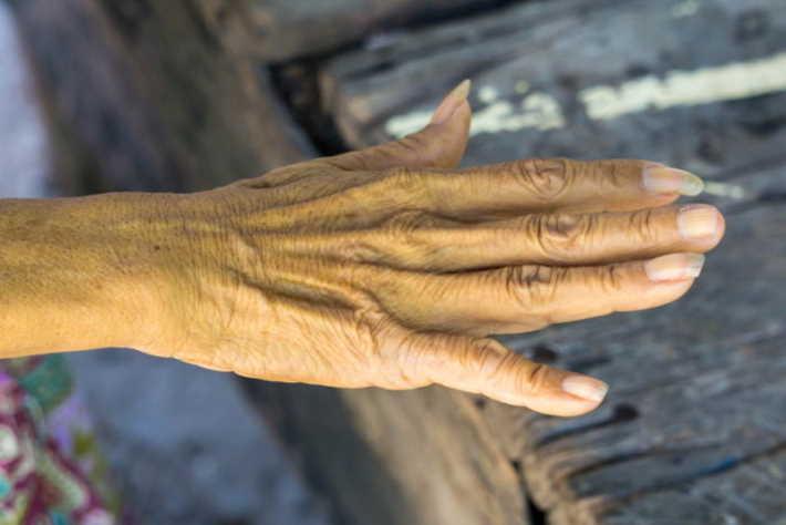 imagen de manchas amarillas en la piel de las manos